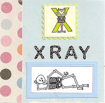 X-Xray-lg